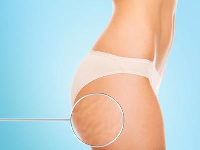 Cellulite | Pazienti.it