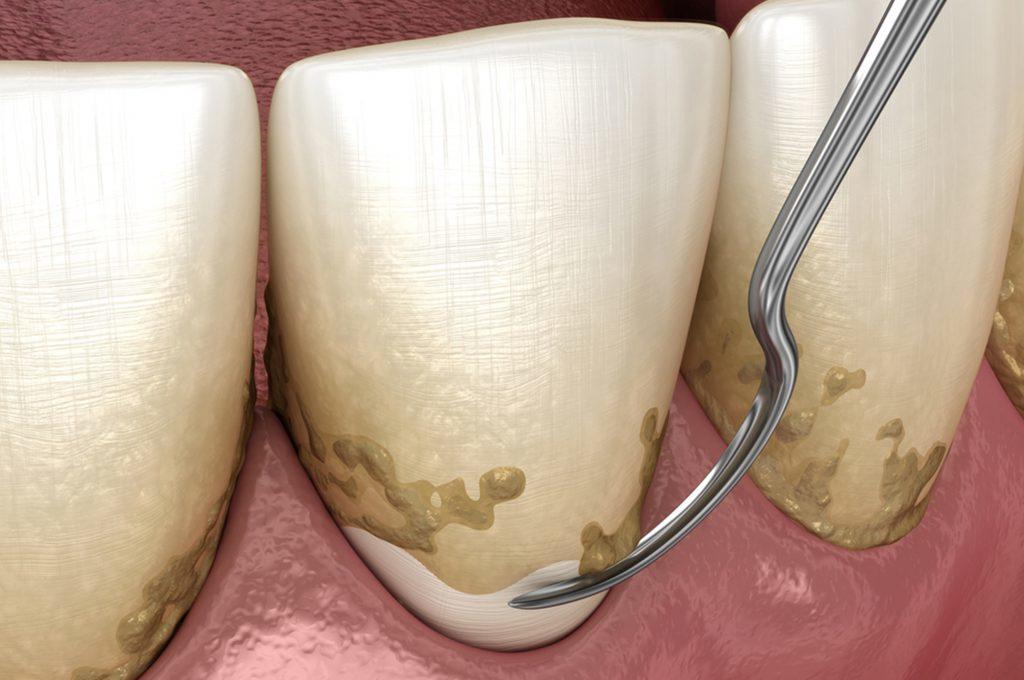 Denti e cuore: il legame