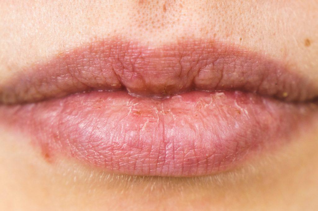 Rimedi per le Labbra Screpolate