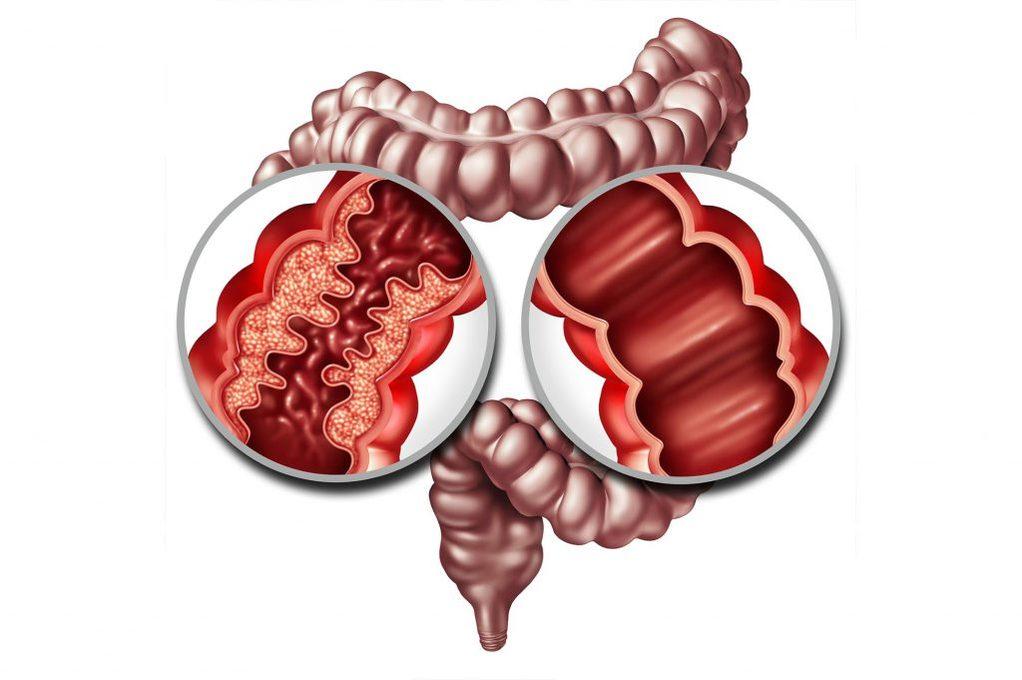 Intestino e malattia di Crohn