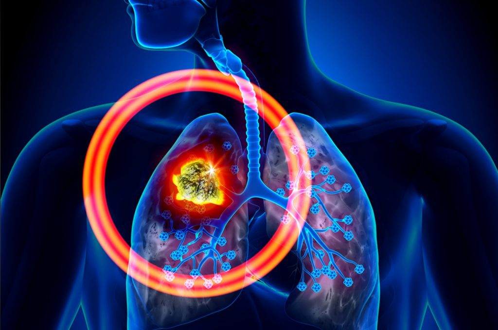 Dieta e Tumore ai polmoni