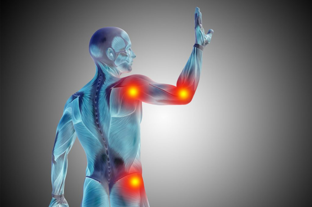C'è un legame tra i dolori cronici e il meteo?