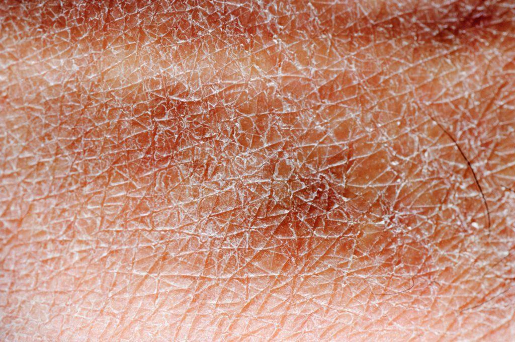 Cosa fare per la pelle secca in menopausa