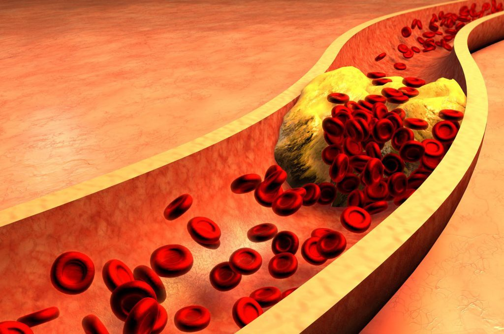 Colesterolo e Tumore al Seno: il Legame