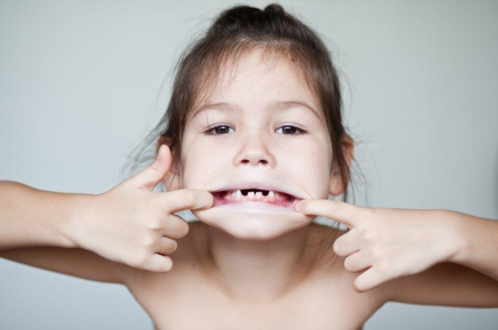 Dentizione bambini: come alleviare il fastidio dei primi dentini