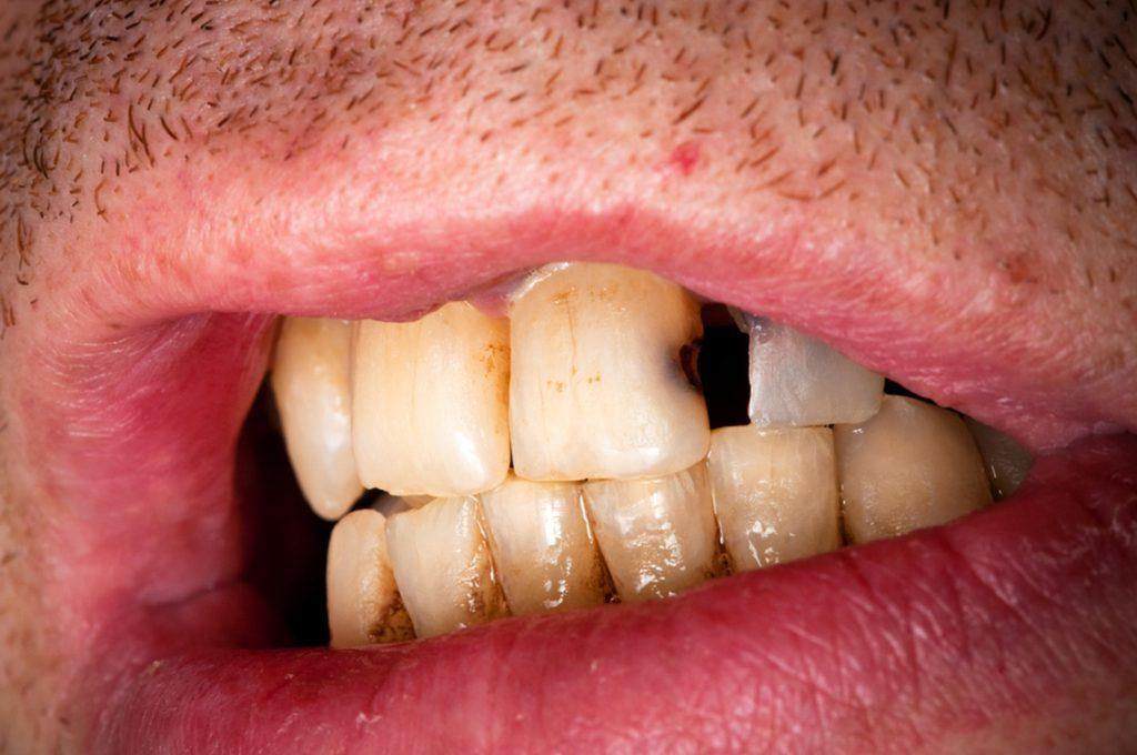 Denti sporchi: le conseguenze