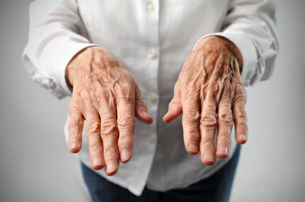 Vene delle mani gonfie: cause e cure