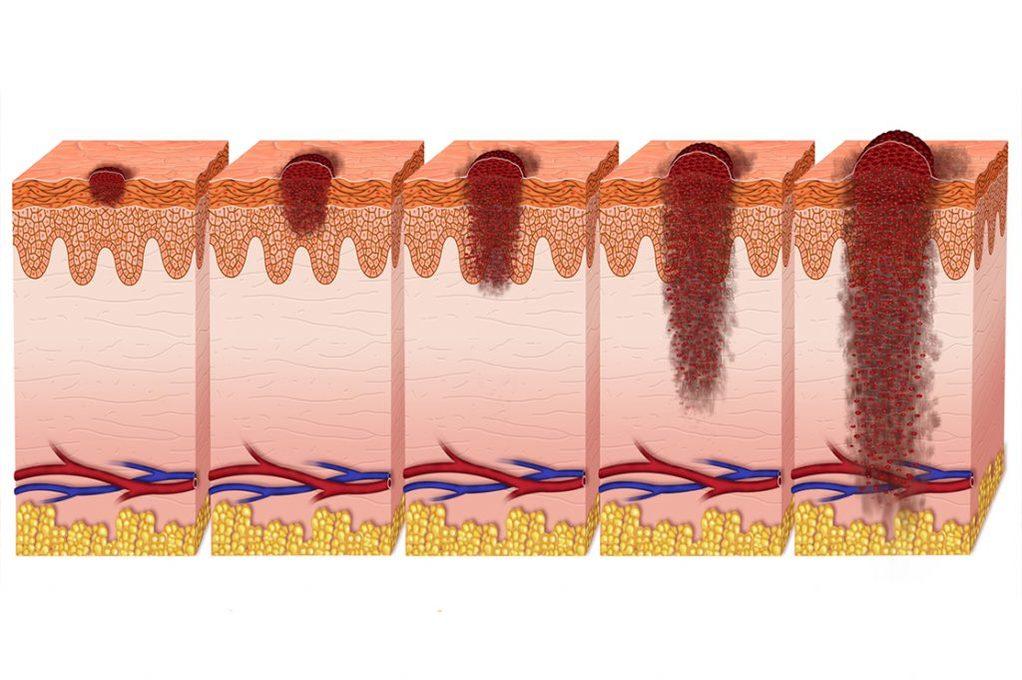 Melanoma Acrale Lentigginoso