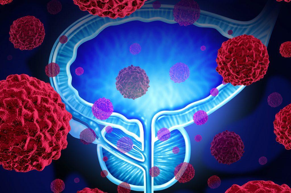 Funghi e Tumore alla Prostata: la relazione