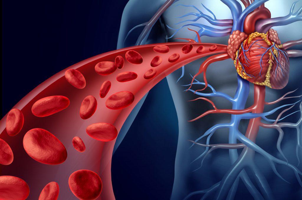 Ferro e rischio di ictus