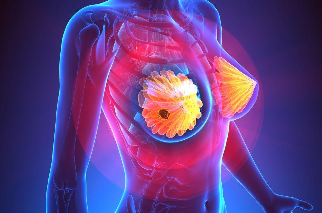 Deodoranti e tumore al seno: qual è la correlazione?