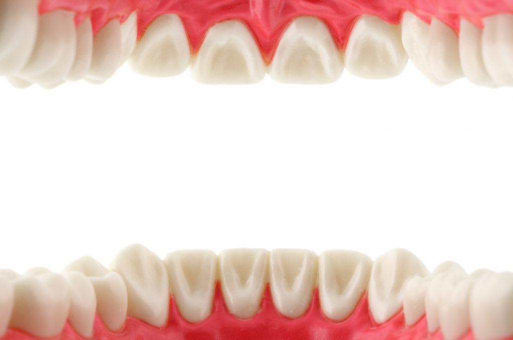 Denti che si muovono: cosa fare?