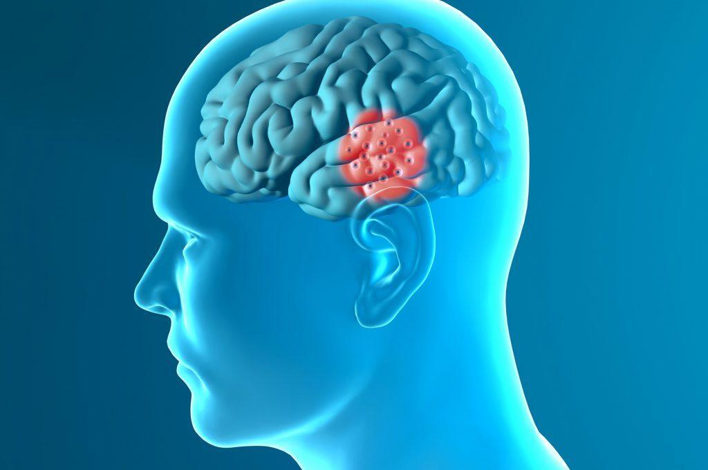 Primi sintomi di Parkinson