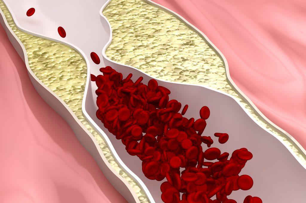 colesterolo e alzheimer: il legame