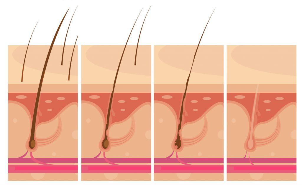 Caduta dei capelli e Chemioterapia