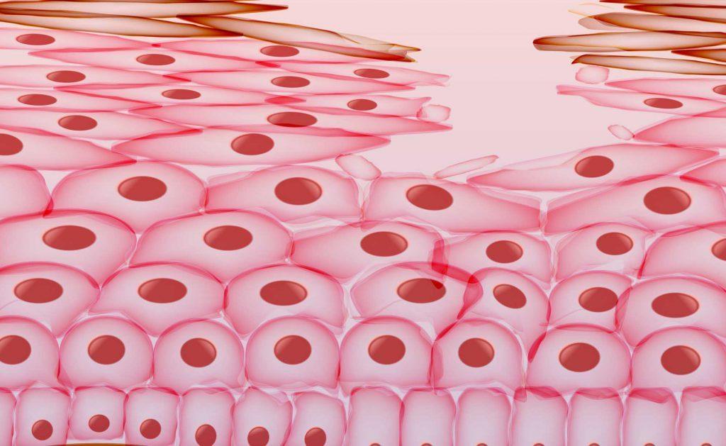 Ulcera da Decubito: cause e rimedi