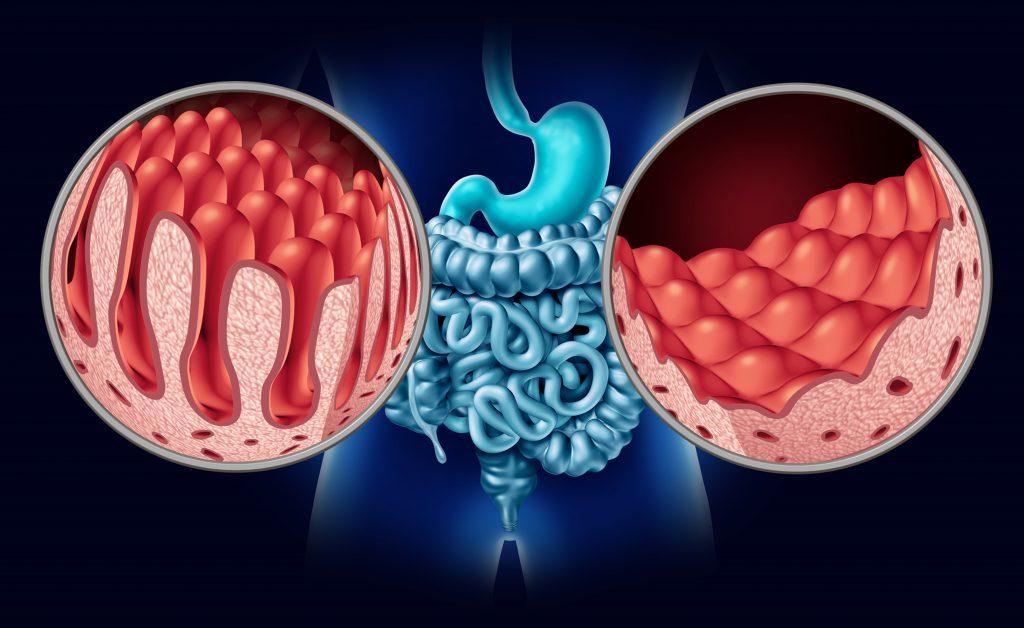 Celiachia: sintomi e cause