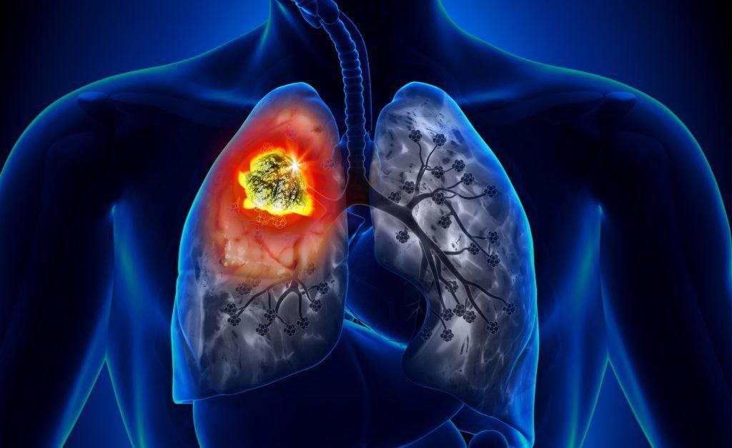 Peperoncino: effetti positivi sul tumore al polmone