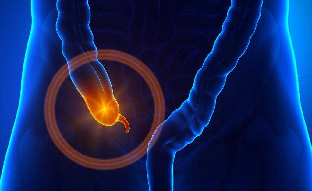 Appendice e Morbo di Parkinson: svelato un legame