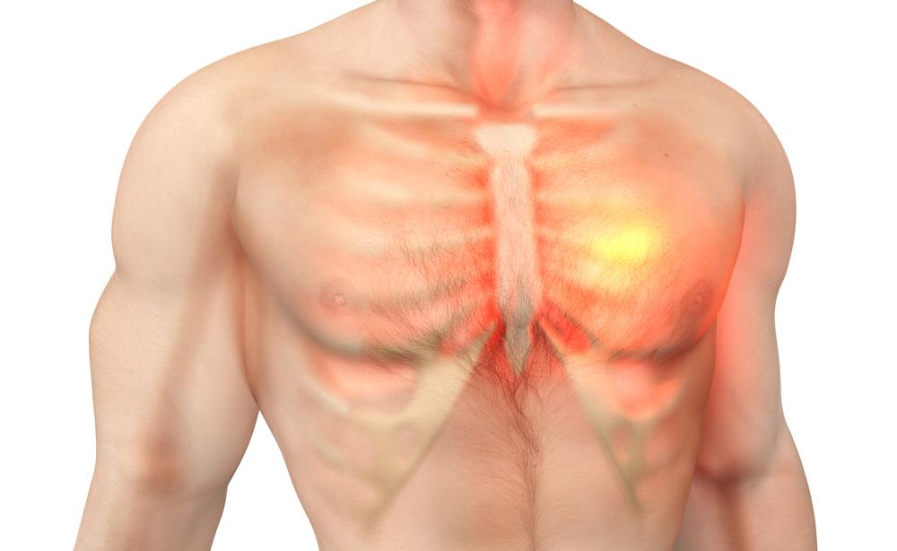 Cervicale e dolore al petto: quale relazione