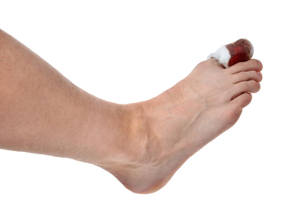 Dolore, calore, rossore e gonfiore del dito - Cause e Sintomi