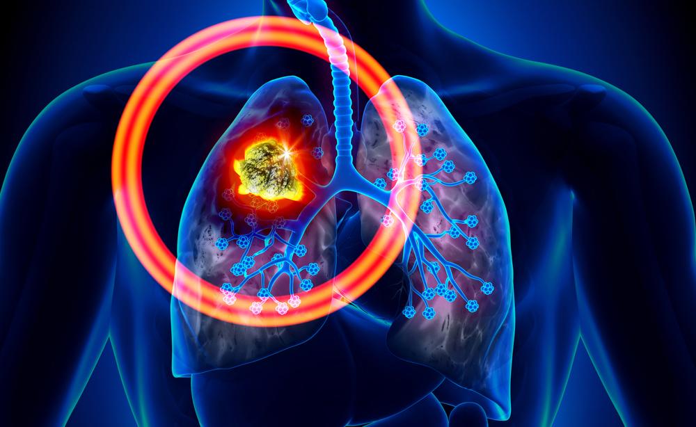 Tumori più diffusi nel 2019