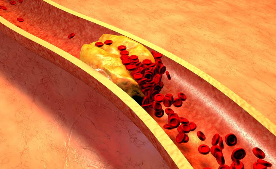 Colesterolo Buono: qual è la sua Funzione?
