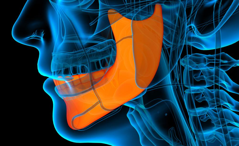 Artrite reumatoide e parodontite: il legame