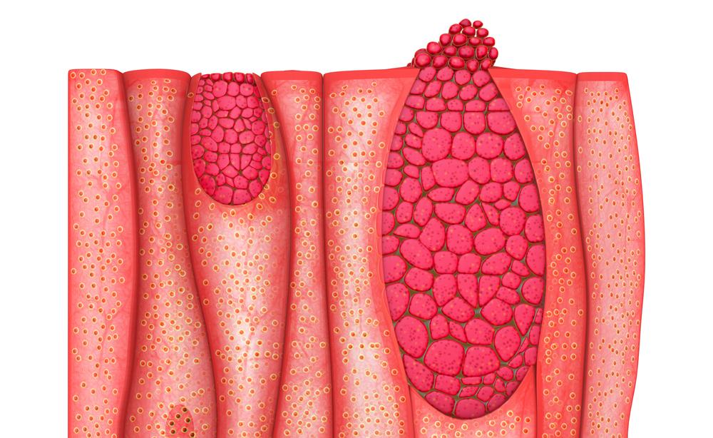 epitelioma basocellulare