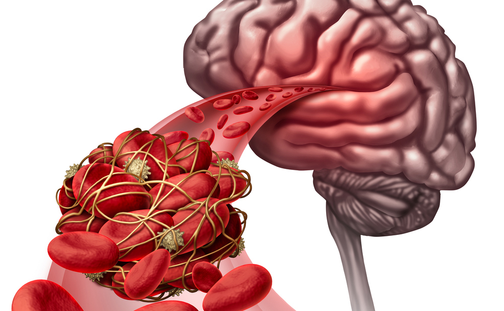 Vasculopatia cerebrale: i sintomi e le cure