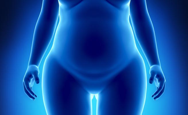 diabete e chirurgia bariatrica: i benefici