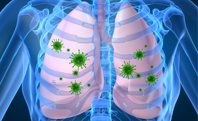micosi polmonare: sintomi e cause