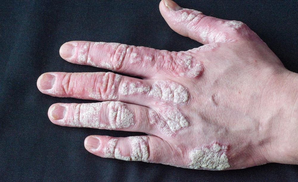 Come si riconosce l'artrite psoriasica