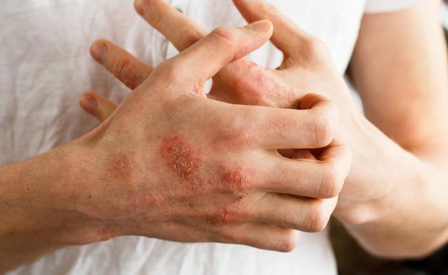 Prurito alle mani
