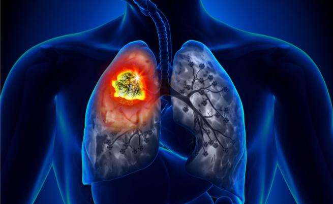 tac spirale tumore ai polmoni: per la diagnosi precoce