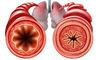 Bronchite asmatica: cause e sintomi