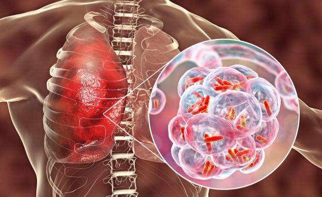 polmonite batterica: pericolosa per il cuore