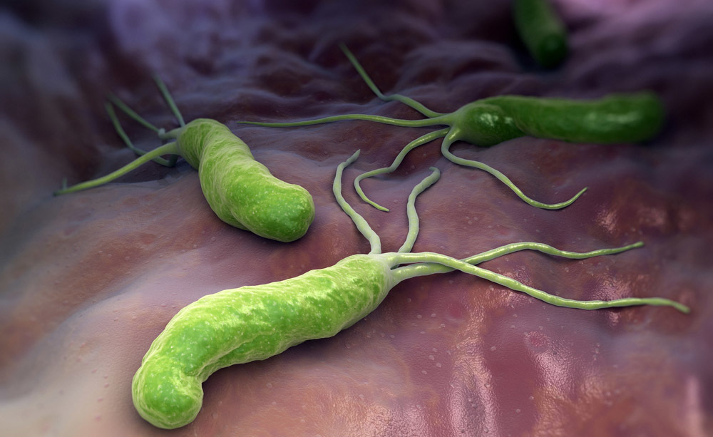 H. Pylori: come si diagnostica a casa