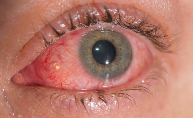 lacrimazione causata dal freddo: cosa fare? I rimedi