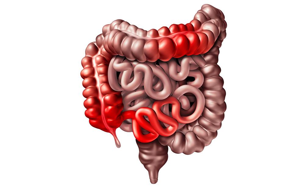 Crohn e Complicazioni con il passare degli anni