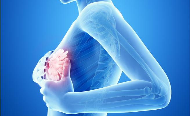 carni processate e cancro al seno: il legame