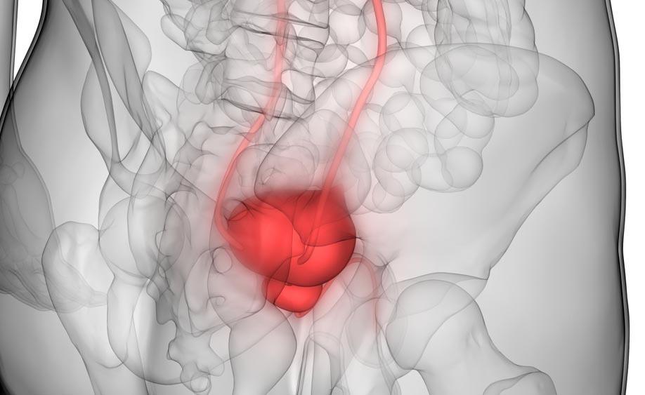 Tumore alla vescica: le Cure
