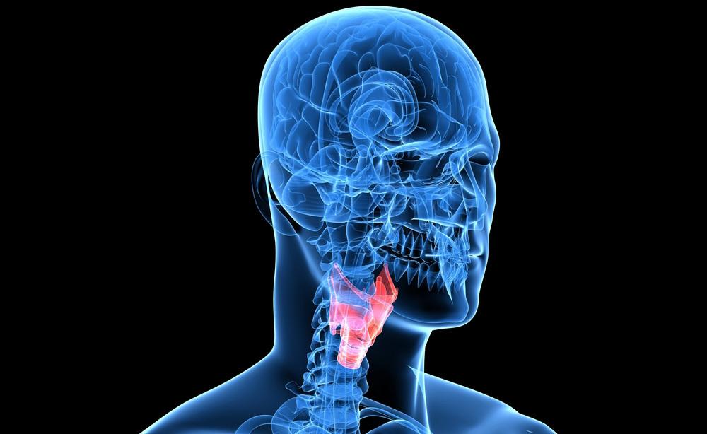 Polipo alla gola