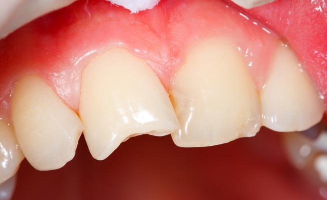Come curare un ascesso dentale con rimedi naturali