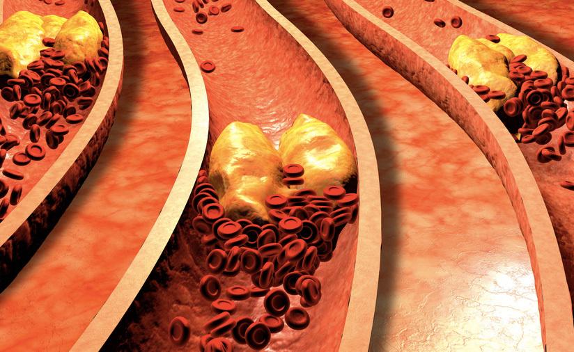 Colesterolo alto: i Rimedi Naturali