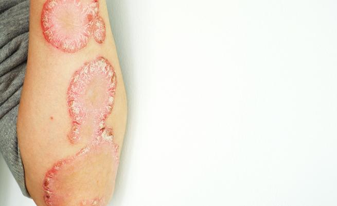Brodalumab psoriasi: il farmaco che elimina le lesioni