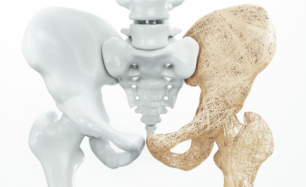 osteoporosi e celiachia: ecco il legame