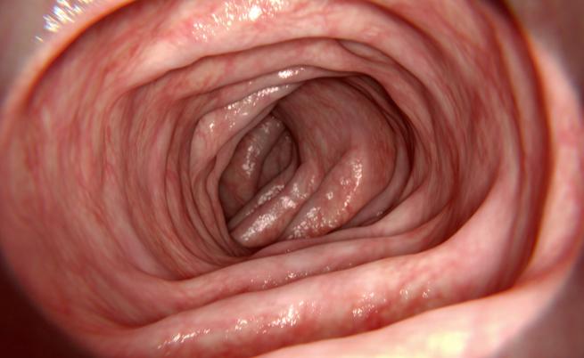 alimentazione e patologie correlate