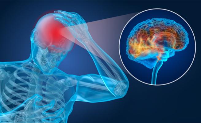 invalidità cefalea: diritti e agevolazioni