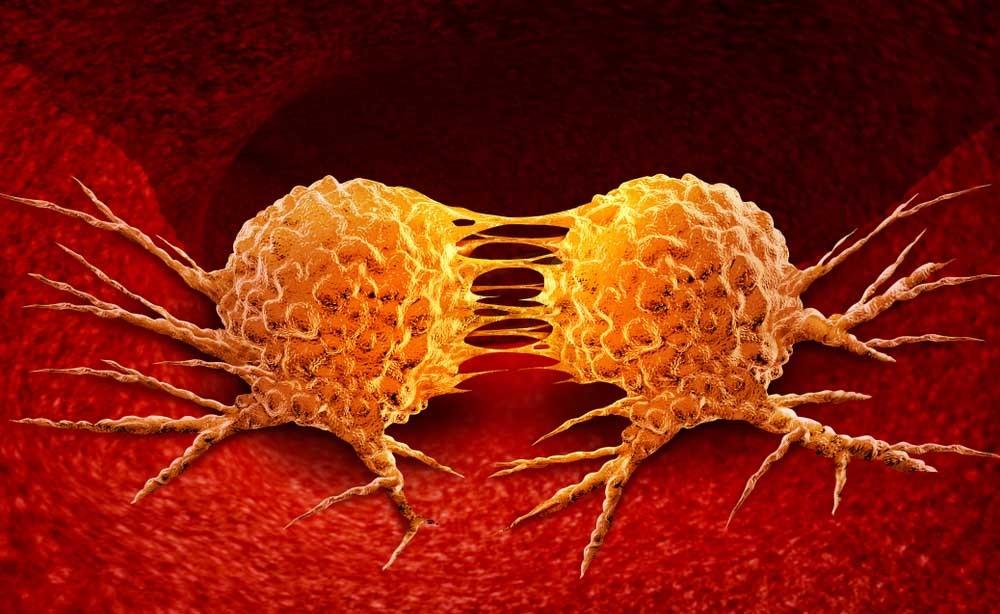 Metastasi: qual è il Ruolo dell'Enzima LH3